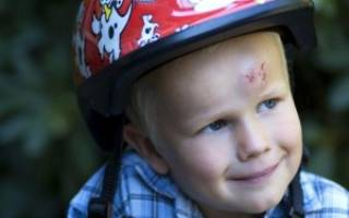 Ребенок ударился затылком: что делать и какие последствия могут быть? У ребенка шишка на лбу – насколько это опасно и что нужно делать