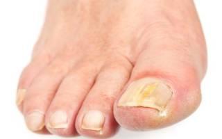 Грибок на ногтях ног: лечение народными средствами. Нетрадиционные методы лечения. Средства лечения ногтевого грибка на ногах. Какие таблетки от грибка применять — список