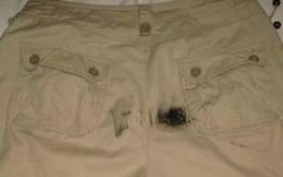 Чем очистить сосновую смолу. Как вывести с одежды пятно от древесной смолы