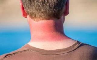 Сгорел на солнце симптомы. Что делать, если обгоришь на солнце: советы и рекомендации