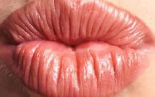 Шелушатся и трескаются губы, что делать? Что делать, когда трескаются губы
