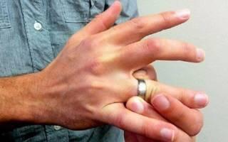 Как снять кольцо с опухшего пальца ниткой. Советы хирурга: Как снять кольцо с опухшего пальца? Лучшие способы снять кольцо