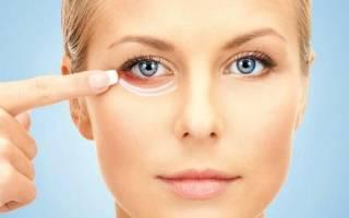 Как быстро убрать синяк под глазом — лечение кровоподтека. Как быстро убрать синяк под глазом