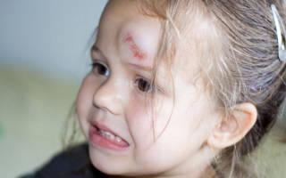 Что делать, если ребенок сильно ударился лбом и у него появилась шишка, через сколько времени проходит гематома? Что делать, если ребенок ударился затылком