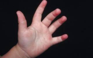 Ребенок 5 лет трясется. Почему у ребенка трясутся руки и что делать