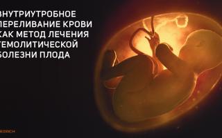 Внутриутробное переливание крови — золотой стандарт лечения анемии плода. Кровь перелили — резус-конфликт устранили. Внутриутробно