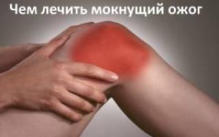 Ожоги после восковой эпиляции как лечить. Лечение гнойно-воспалительных ран, ожогов, гнойной язвы. Лечение ожогов маслом и пчелиным воском